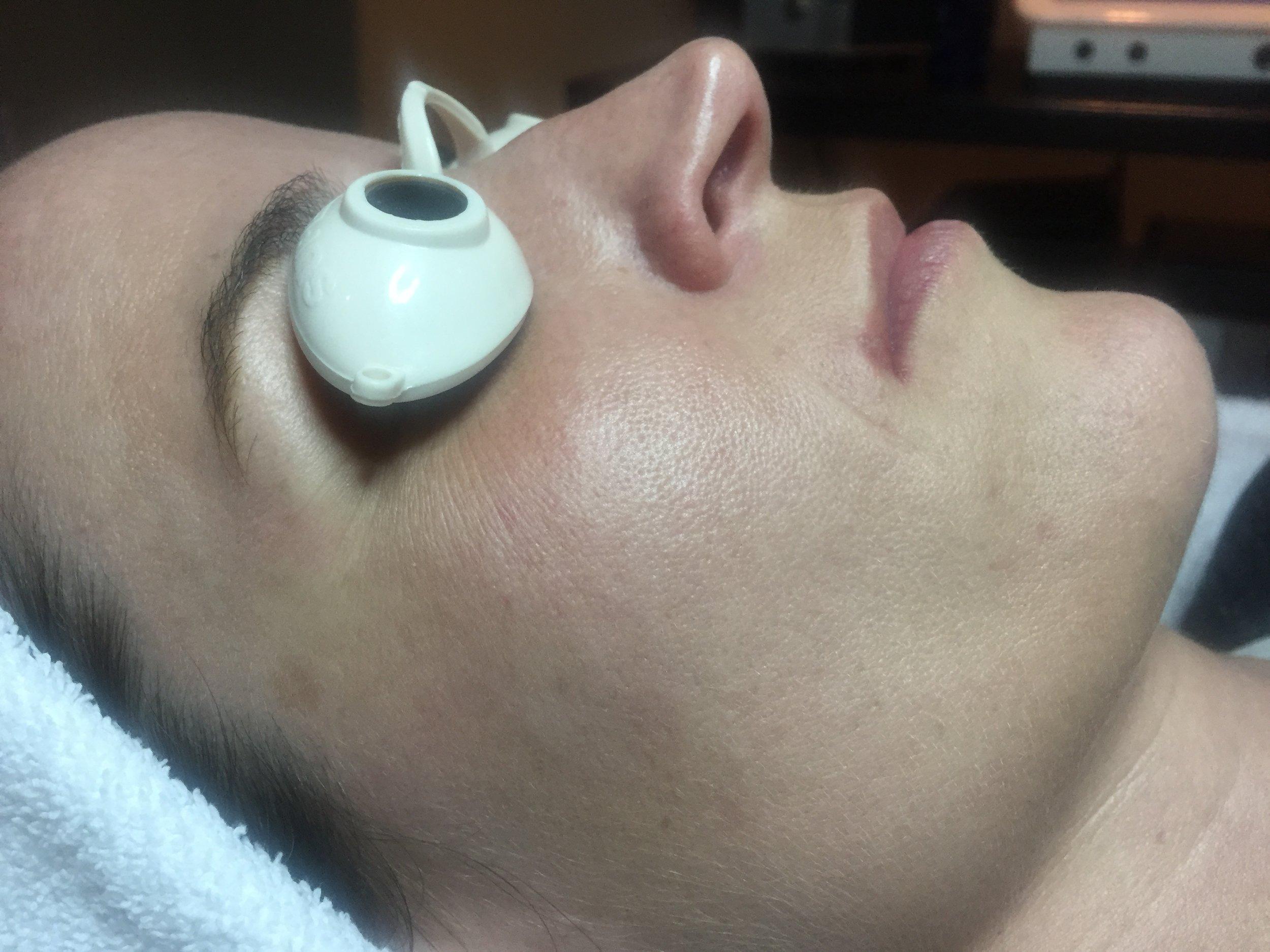 holistic facial rejuvenation
