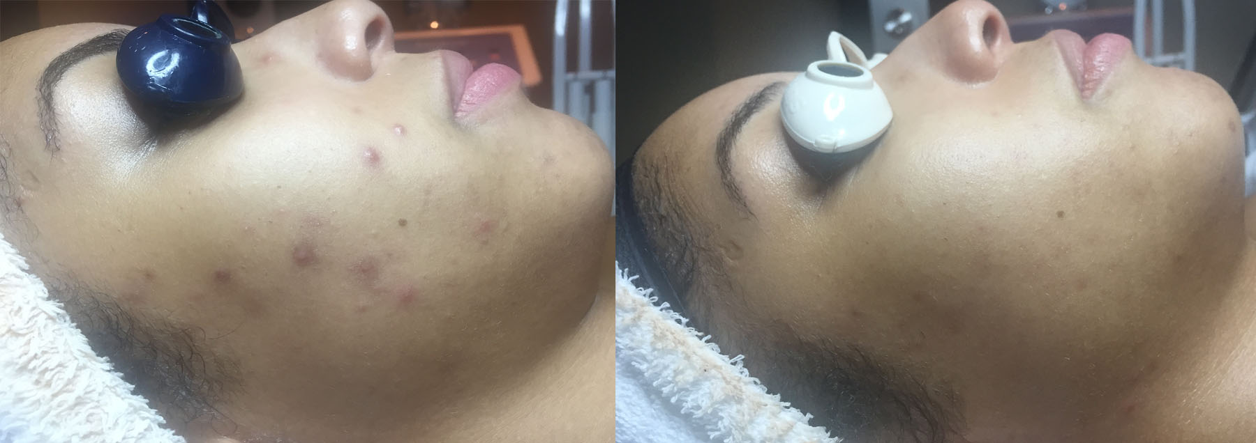Results obtained after 1 Light Peel