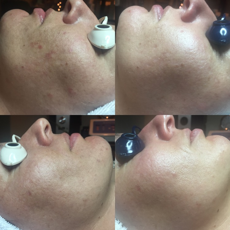 Treatments for pigmentation and aging.jpeg