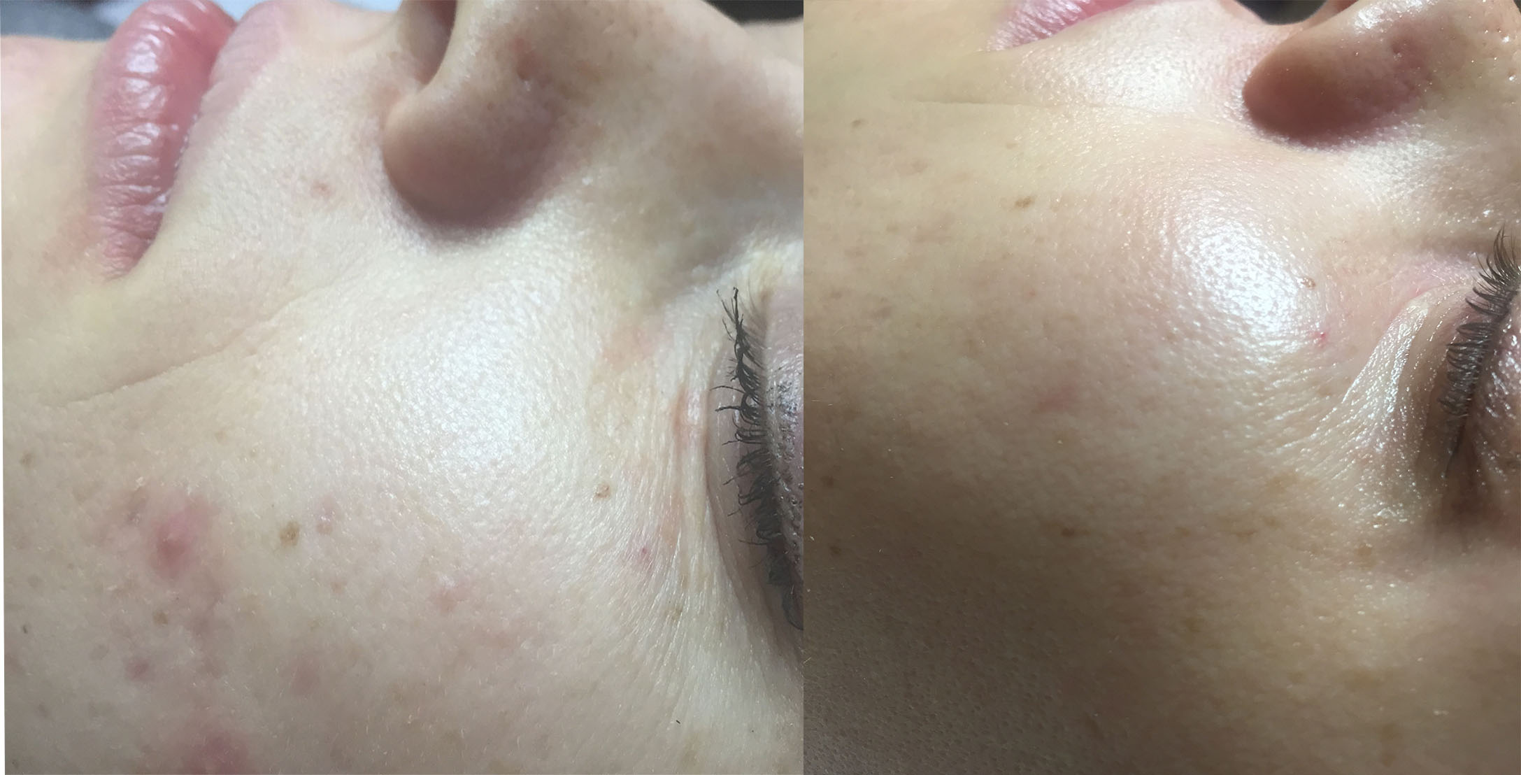 facial rejuvenation with silk peels and chemical peels