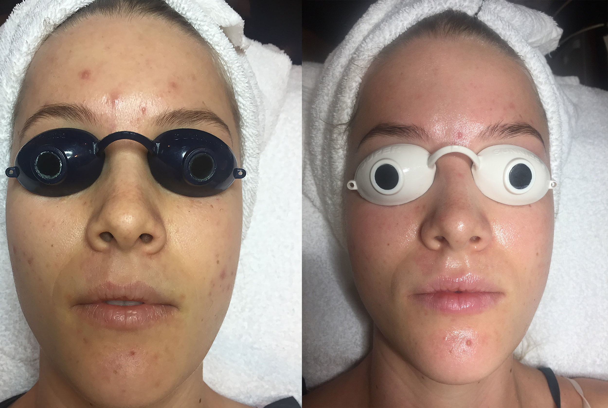 Facial Rejuvenation for Acne, Dehydration and Dullness