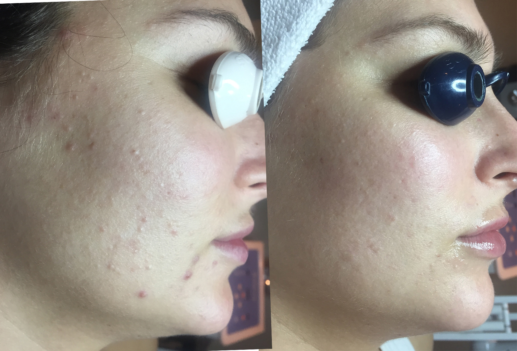 Results obtained with 2 Level 2 Peels