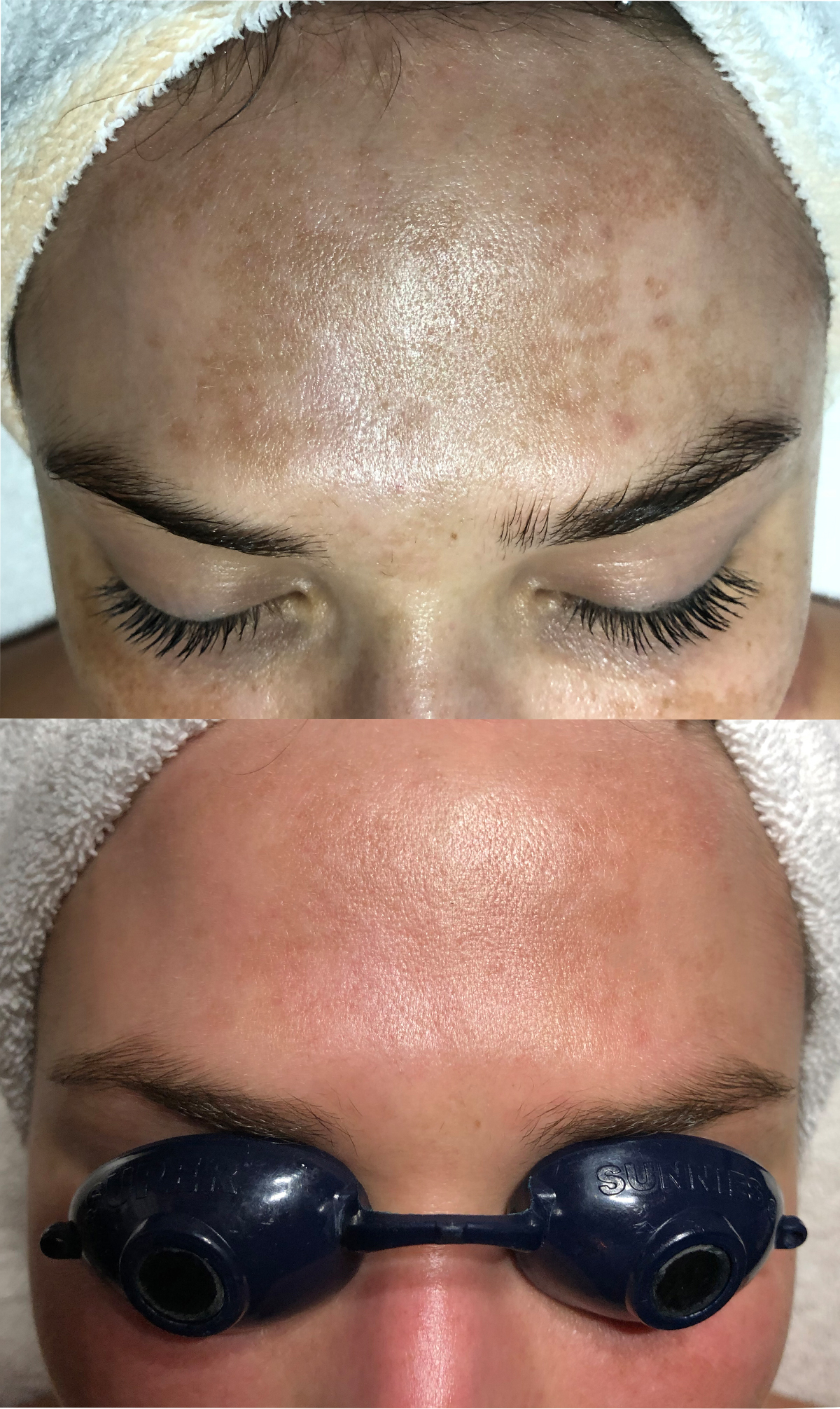 Pigmentation Forehead After.jpg