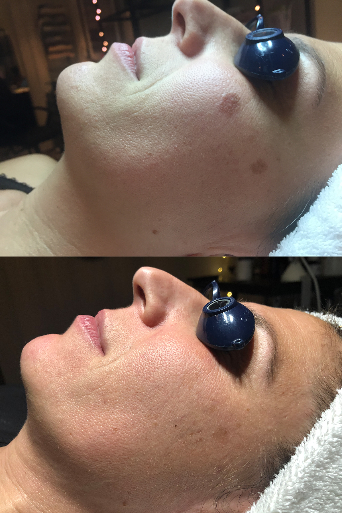 Pigmentation solved by using a combination of Vitamins, Collagen Induction and Silk Peel. Total 3 treatments.