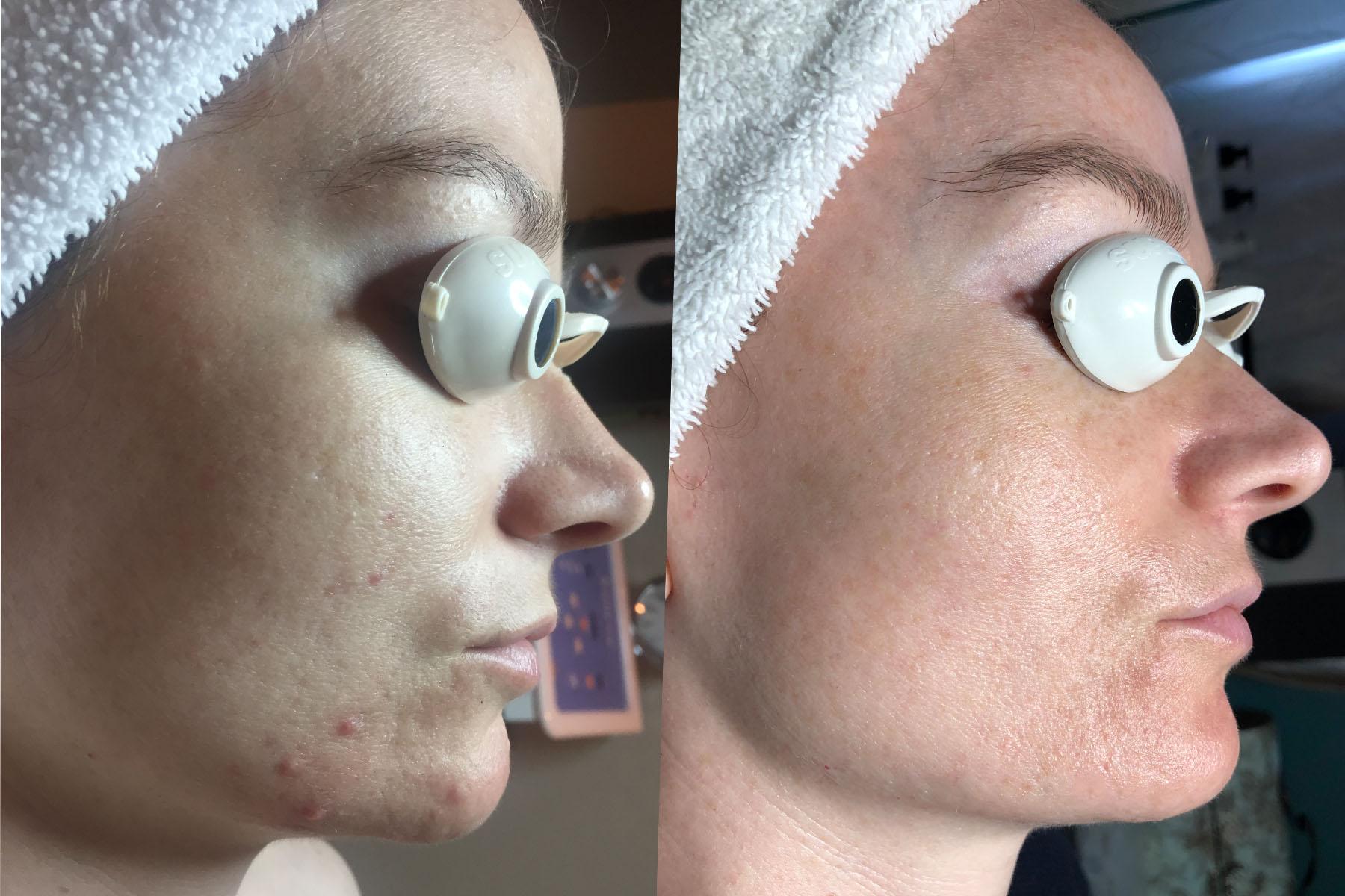 Hormonal acne + redness.jpg