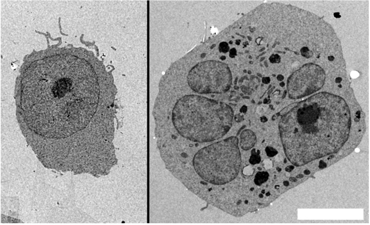 [26] Over expression of TPCN1 causes multi nucleation.