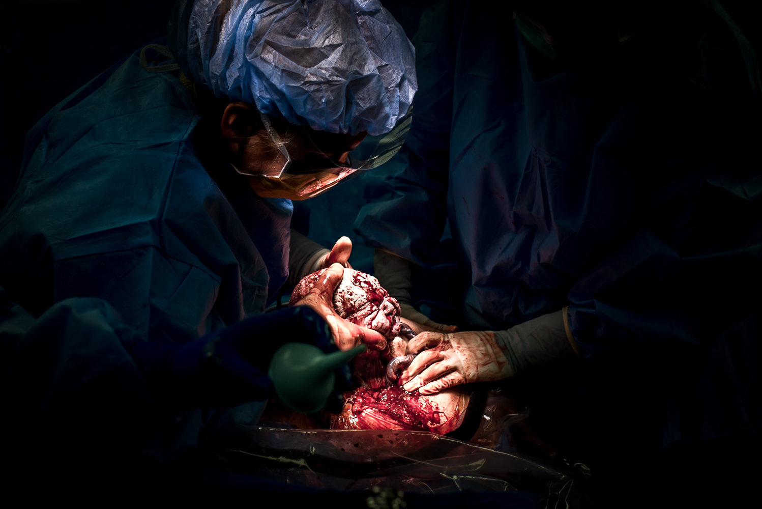 An amazing belly birth (c-section) I had the privilege of photographing. (Skyridge Medical Center)