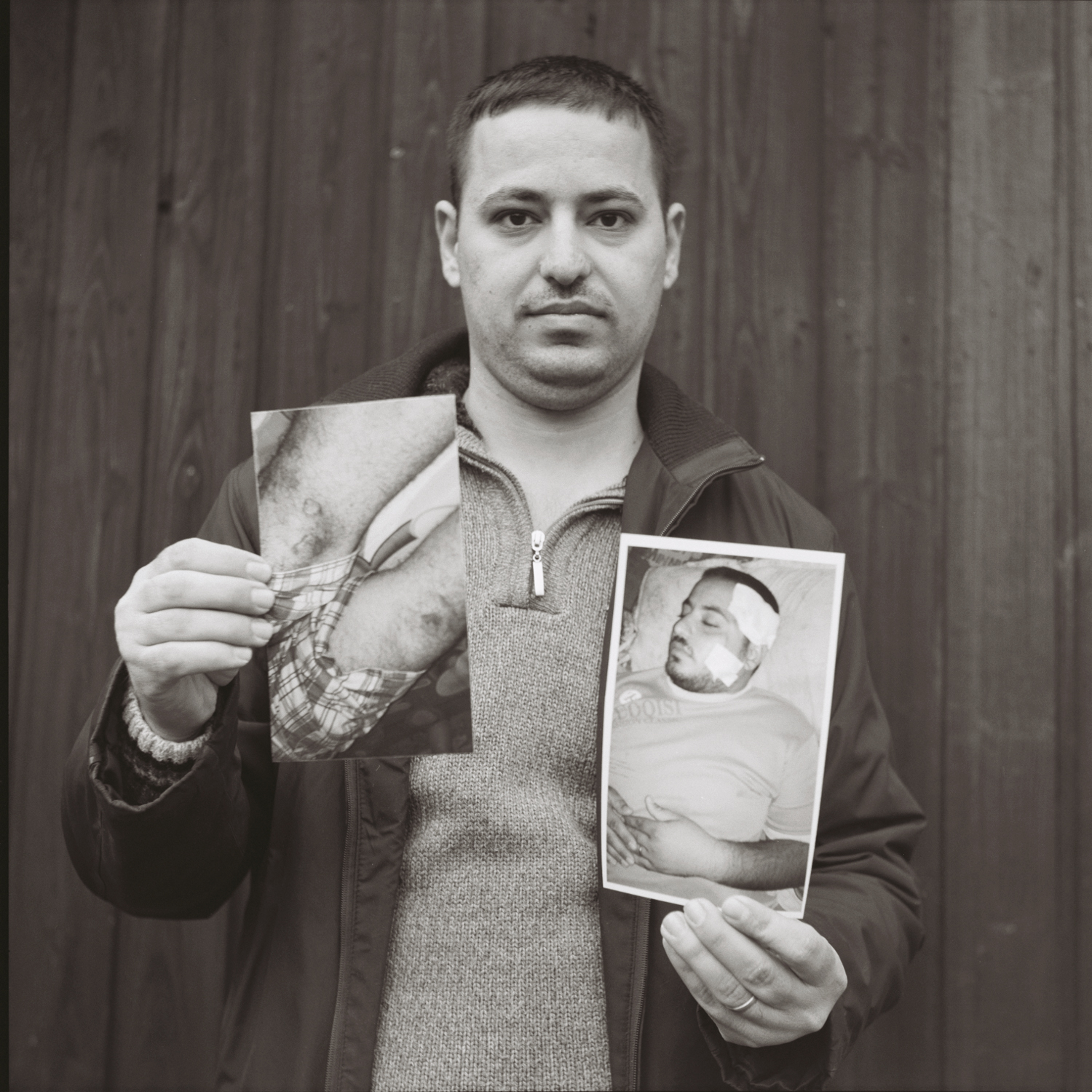 Mariam's husband shows images of his wounds from ____. Czechia, February 2016.