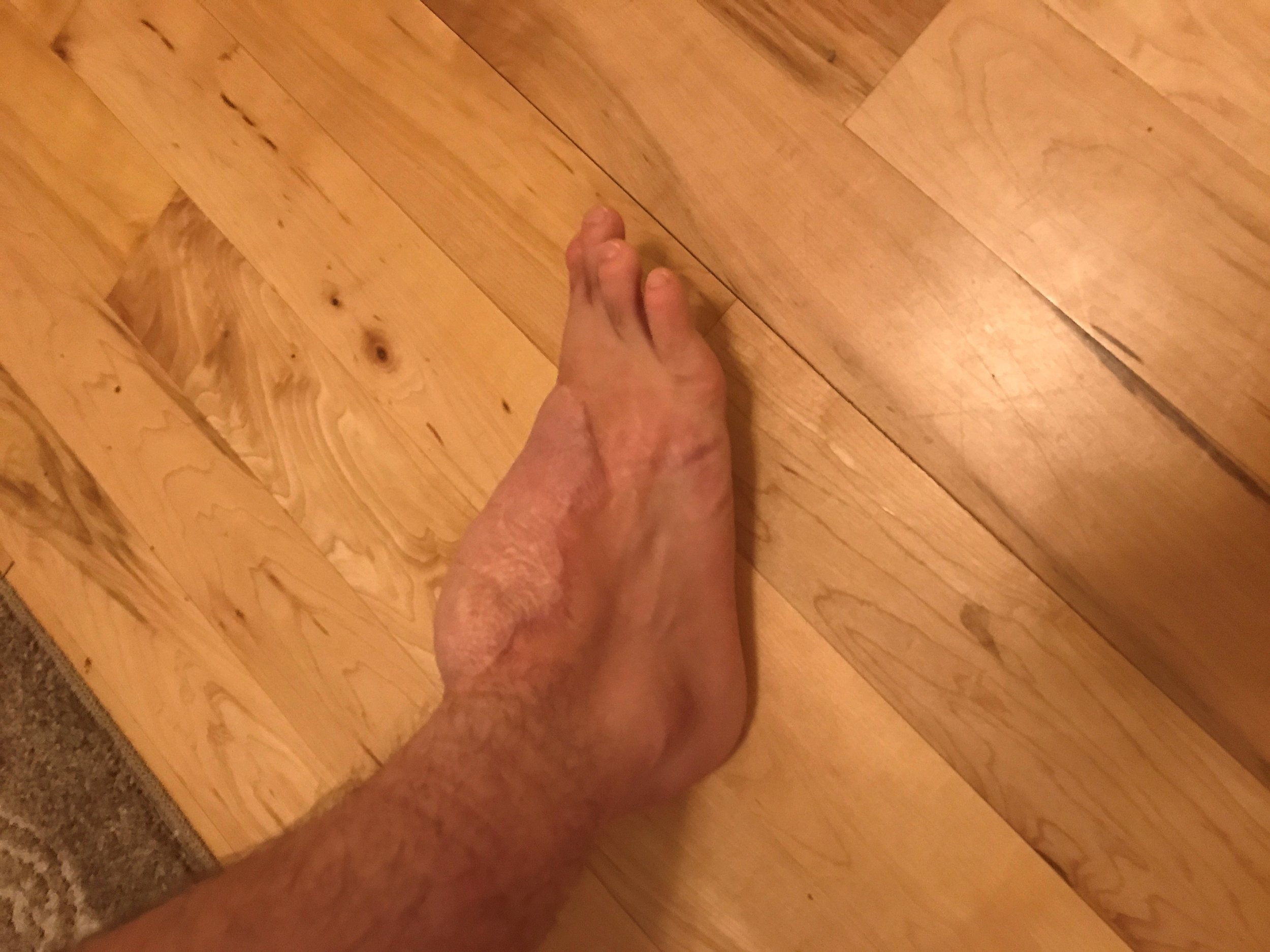 COLTON STEEL FOOT.jpg