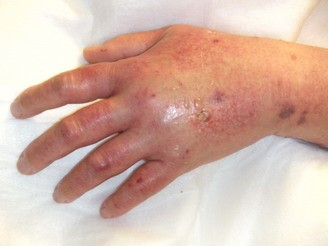 A hand showing infiltration of infusate into the soft tissues by a peripheral IV