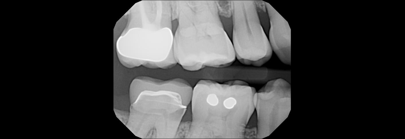 Dental x-ray Jacksonville Dentist