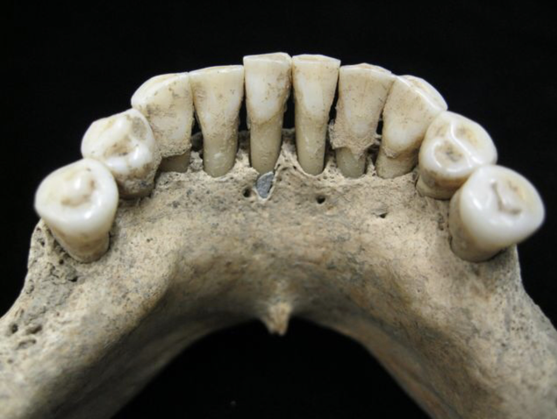 The lower jaw of a medieval skeleton reveals entrapped lapis lazuli pigment, a rare blue dye that was used in luxury and religious documents ofthe time. What's remarkable is that the jaw belonged to a woman -- and women were not known to author such illustrations.