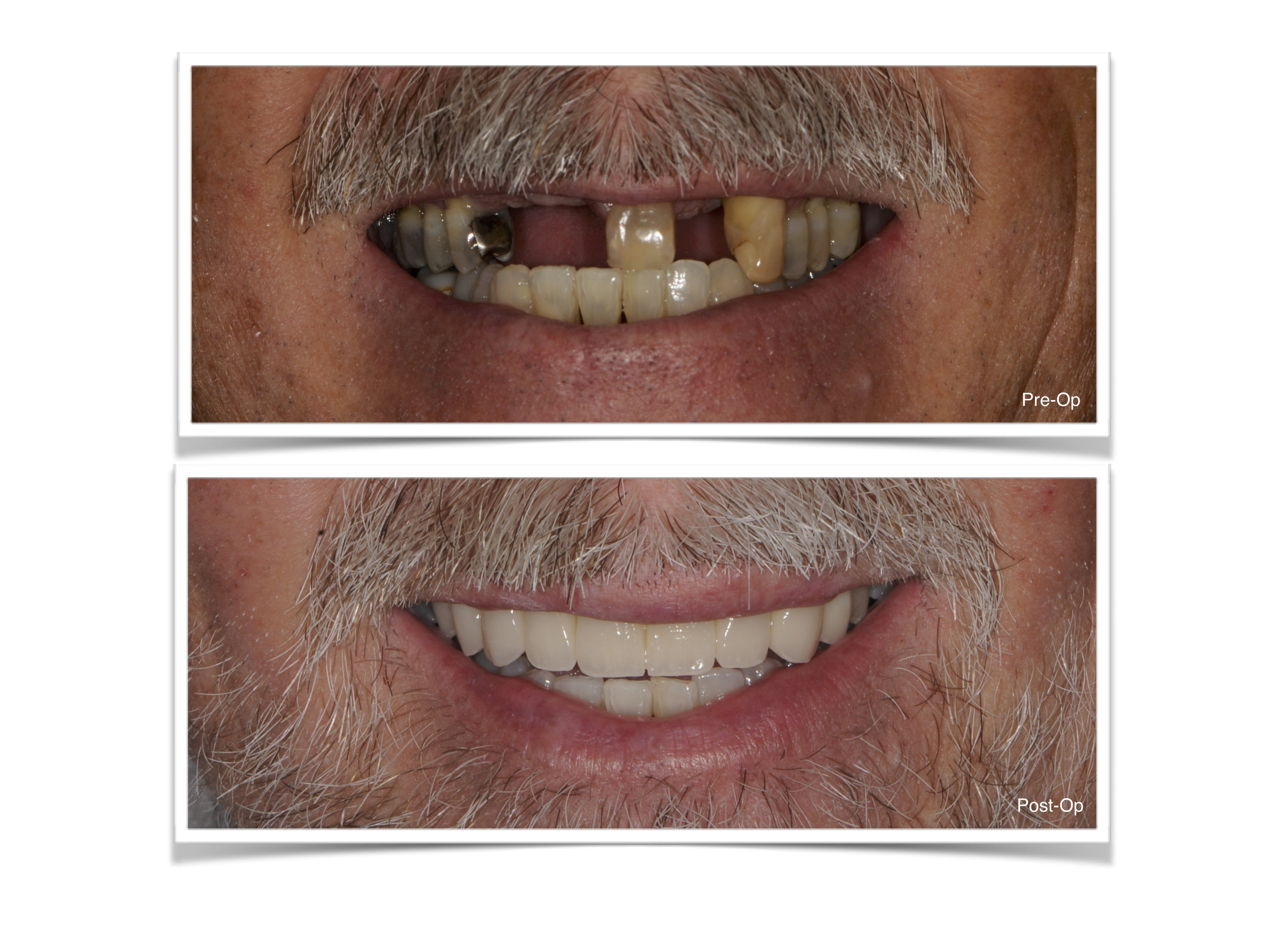 All Ceramic Bridge Jacksonville Dentist 32207