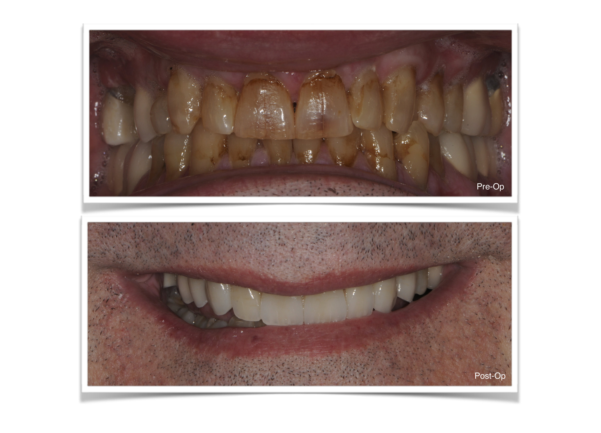 Ceramic Crowns on Front Teeth