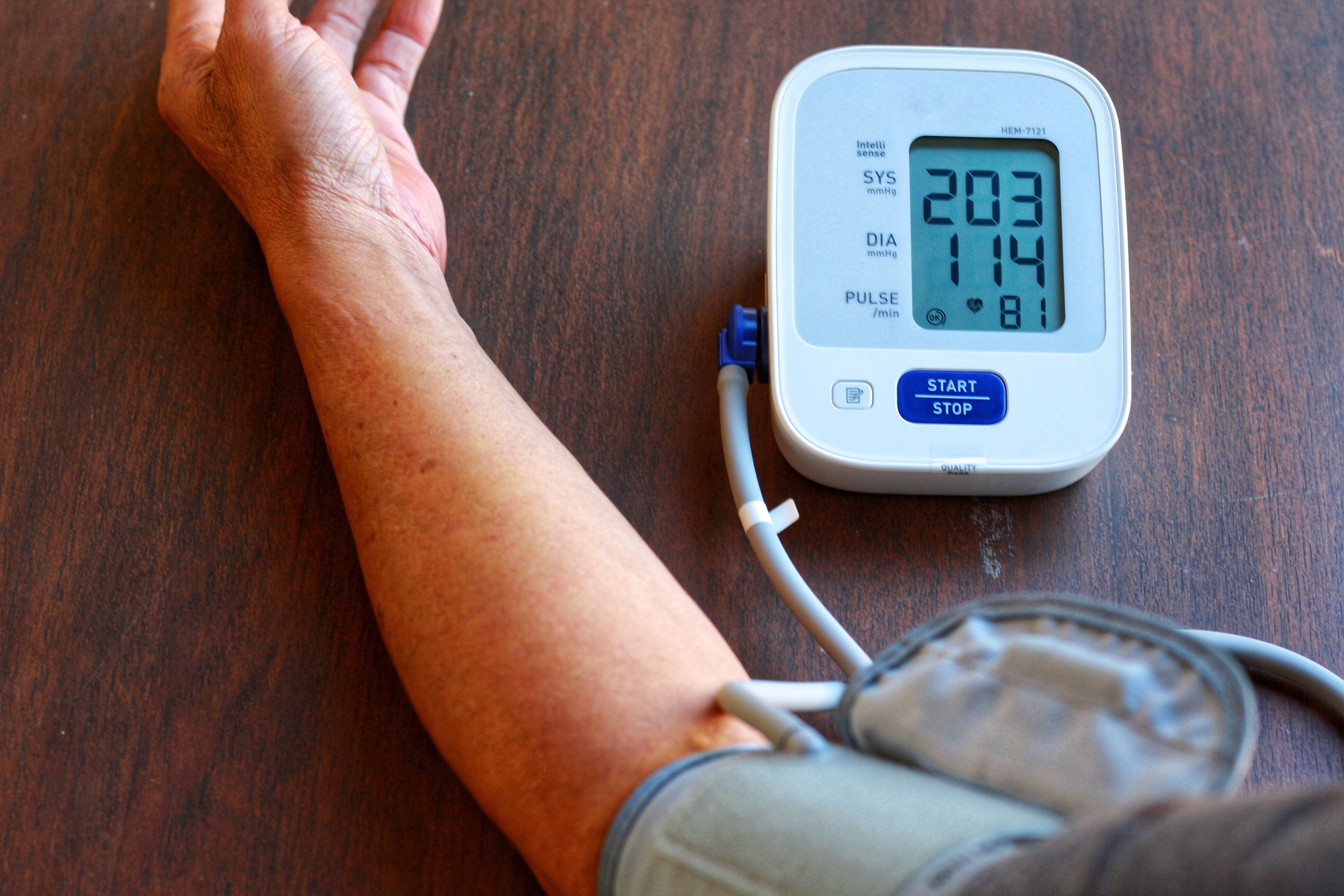 Using Acupuncture for High Blood Pressure