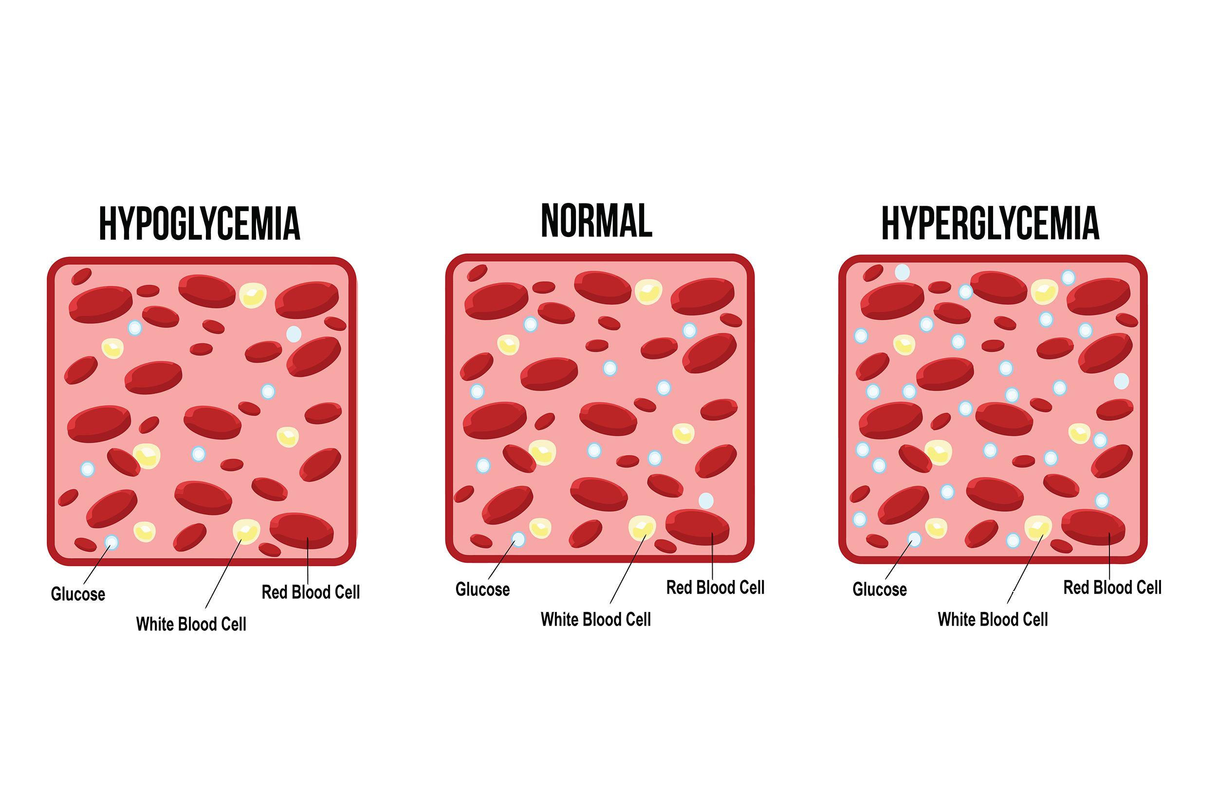 Hyperglycemia vs hypoglycemia