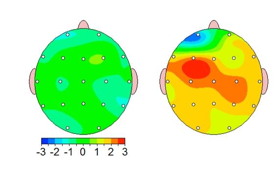 QEEG Brain Scan