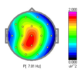 Body and Brain Centre single QEEG map.png