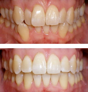 Patient started treatment at age 11 and wore braces for 26 months. He loves his new smile