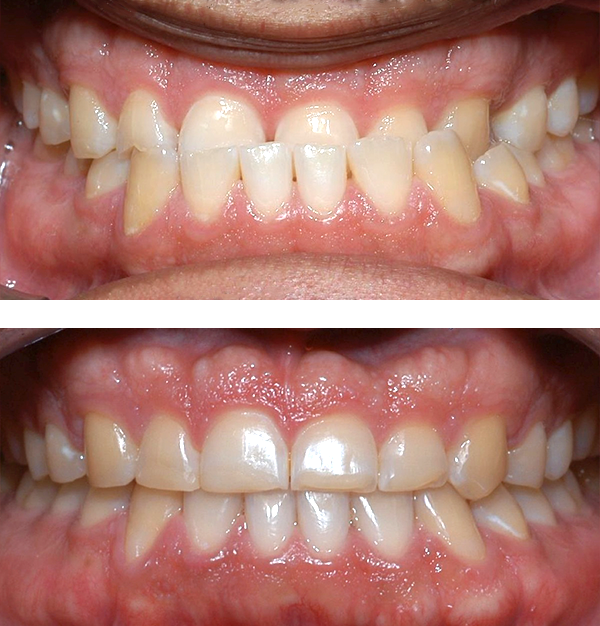 Lower front teeth in front of upper teeth   Patient's underbite was causing her jaw joint discomfort and permitting excessive wear patterns on her teeth. After 30 months of treatment, starting at age 32, she now finds smiling and chewing much easier.