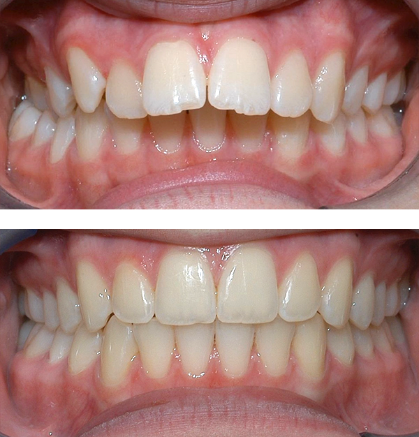 Protruding front teeth   At age 10, patient had a large overbite with the top teeth protruding beyond the bottom. She had two phases of treatment. The first helped her jaws to grow more harmoniously, and the second aligned her teeth and bite. At age 13, she was proudly displaying her new smile.