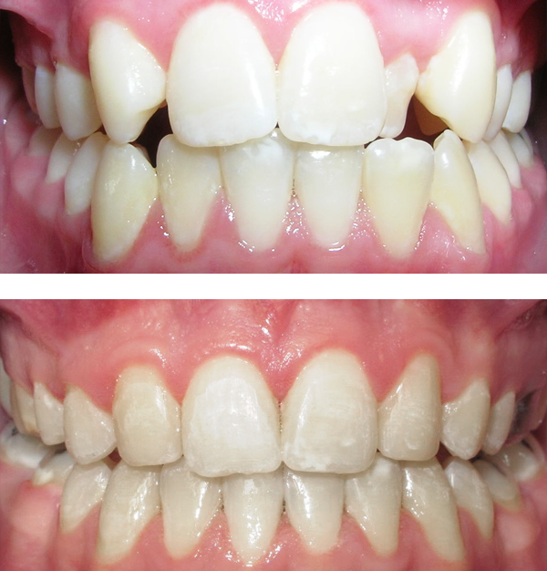 """This patient's lateral incisors were congenitally missing. She had braces for 20 months to move the teeth into the correct position. The missing teeth were then replaced with bonded """"Maryland"""" bridges."""