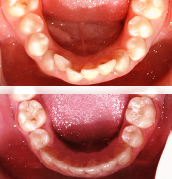 Sometimes braces are not needed to get noticeable improvements in tooth alignment. This patient was first seen at age seven for crowding of the lower permanent teeth. A procedure was performed to reduce the width of the adjacent baby teeth, and the permanent incisors aligned on their own in nine months.