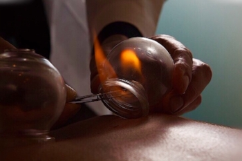 Cupping increases blood flow and helps detox – but what does that mean?