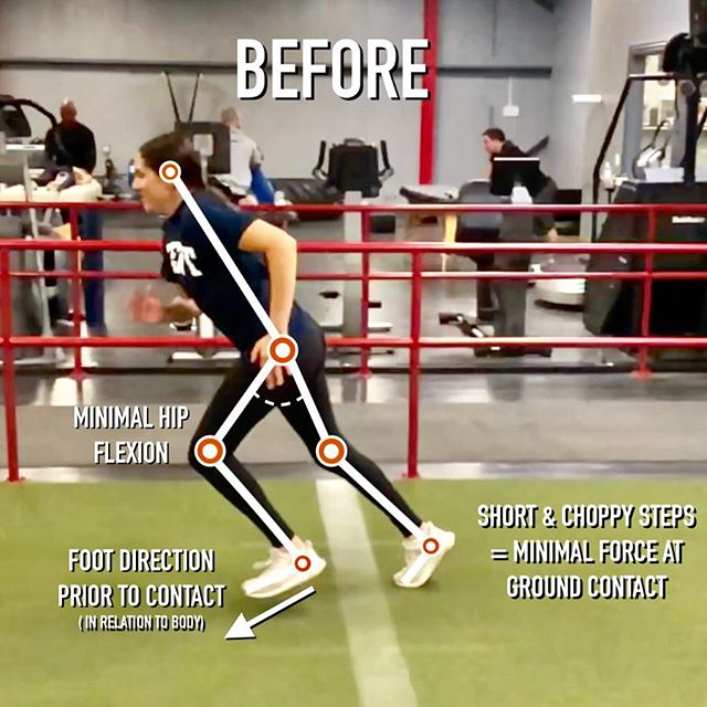 """GREAT Before and After breakdown of 8th grader Olivia's first session. She is a self-proclaimed """"slow"""" athlete, and wants to improve her speed to help her become a faster and more explosive hockey player.⠀ ⠀ ◾These two videos are a great teaching tool to help understand basic acceleration mechanics. In the first video she has very minimal knee drive and this causes a chain reaction of movements that will absolutely kill her ability to run fast. When the knee doesn't get high, the foot doesn't either. This is problematic because we want her foot to be moving backward (in relation to her body) at ground contact. But if her foot is only inches off the ground most often it strikes the ground moving forward or straight down. I call this a dead foot - she's not going to get any functional """"spring"""" off that step. If your foot strikes down, your body goes up. If your foot strikes back and underneath your center of mass, your body moves forward. ⠀ ⠀ ◾After our mechanics tutorial and some resisted sprints (great for learning mechanics because it slows the movements down) it clicked for her. Even though it felt """"extremely strange"""" for her to run like this, she immediately felt a lot faster (and looked it too!). ⠀ ⠀ ◾Mechanics MUST be taught first, then from there you can build off of that foundation. 👊⚡"""