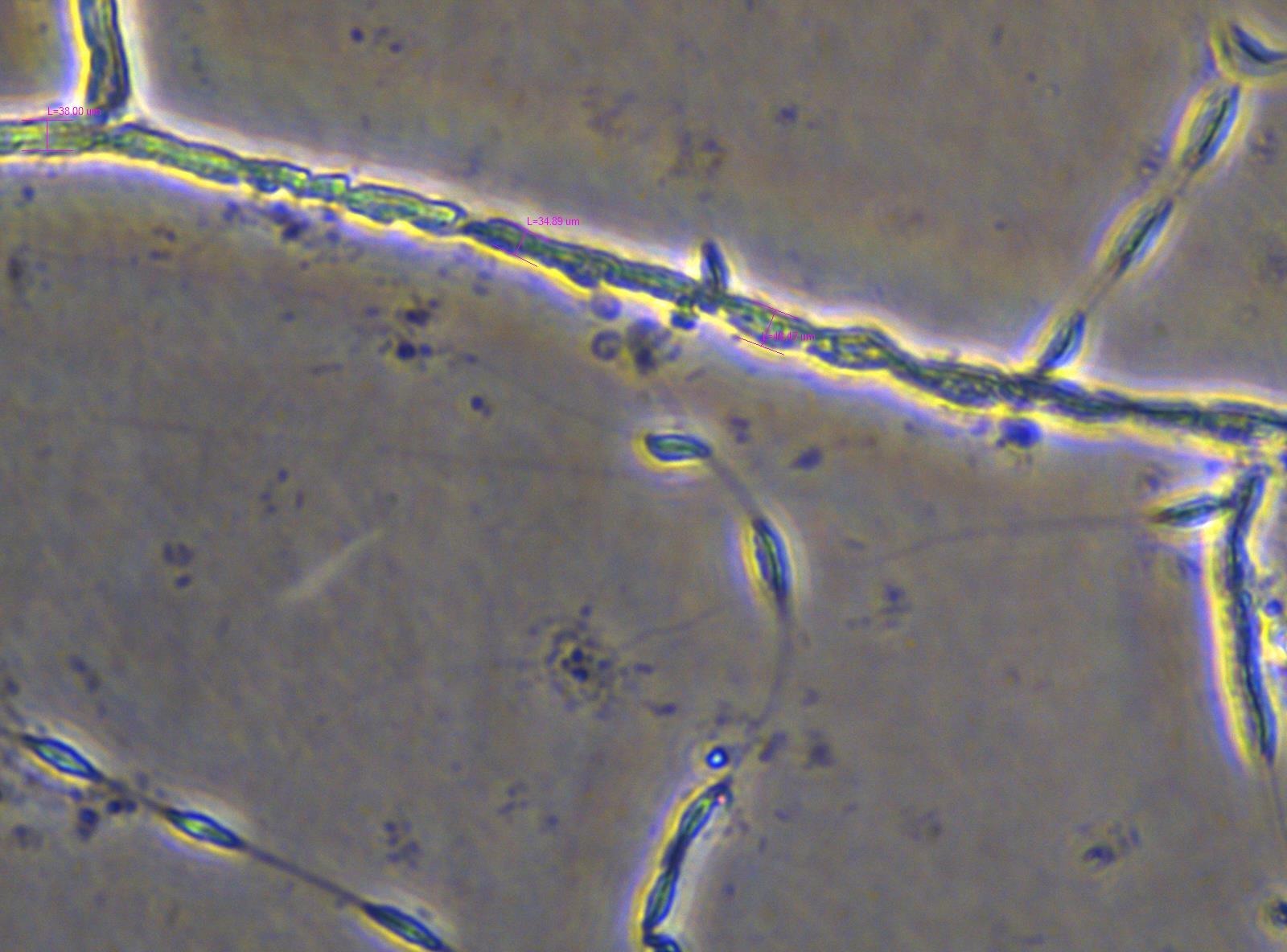 Copy of 01-21-19 JR hom moon adult thick traintracks 40X Plate 1.jpg