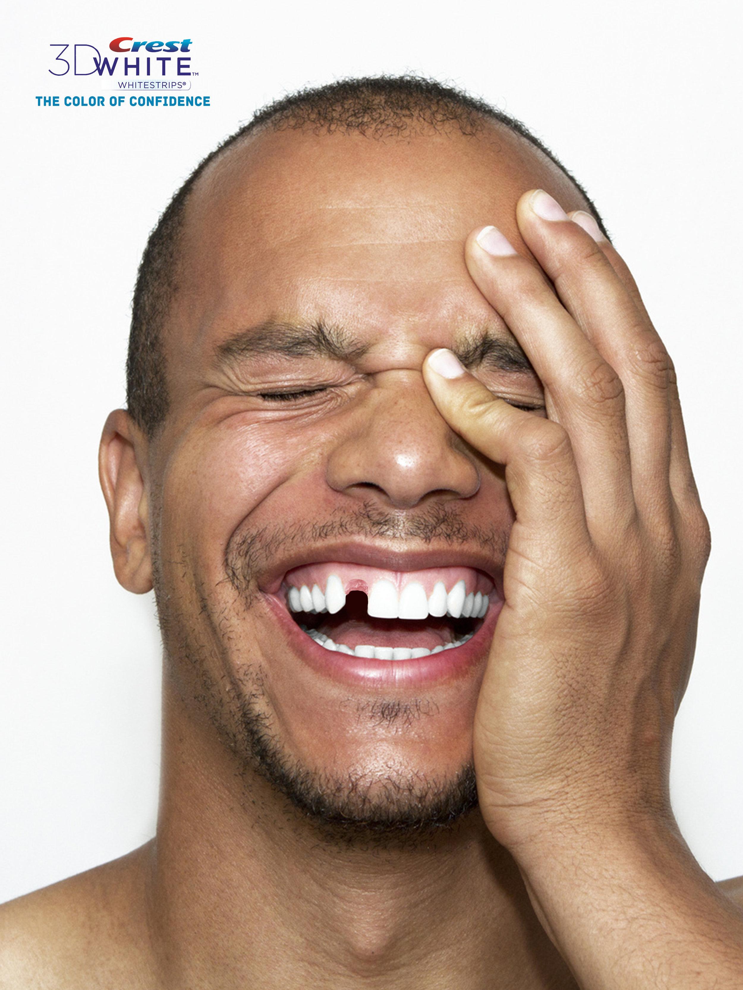 Tooth1(1).jpg