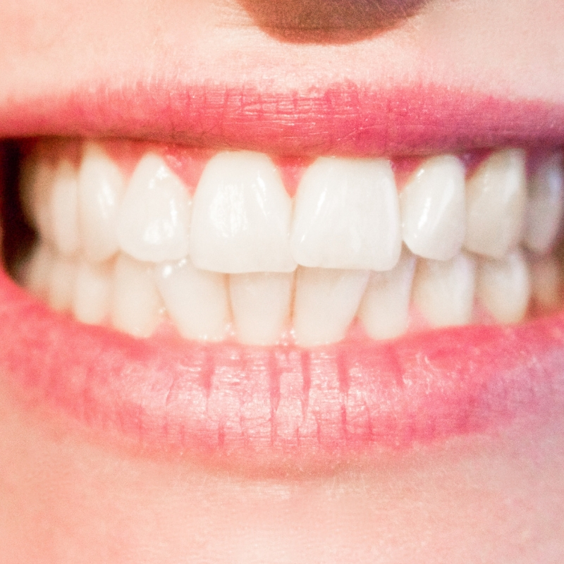 tooth ache.jpg
