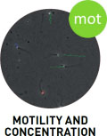 sca_motility_concentration_logo_english.jpg