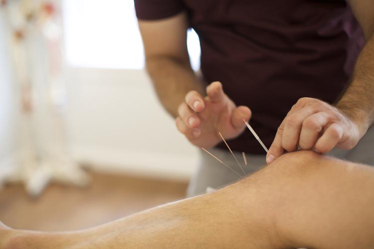 Acupuncture Knee.jpeg