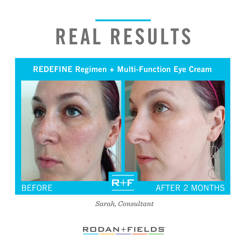 REAL RESULTS - REDEFINE + EYE CREAM.jpg