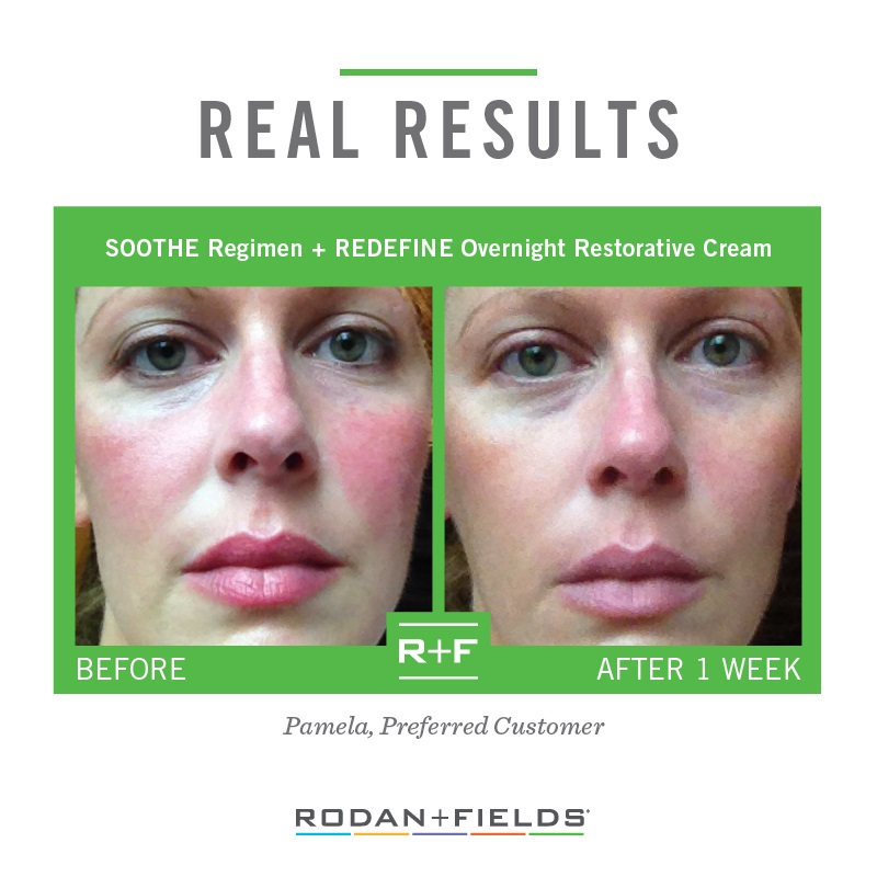 REAL RESULTS - SOOTHE + Eye Cream.jpg