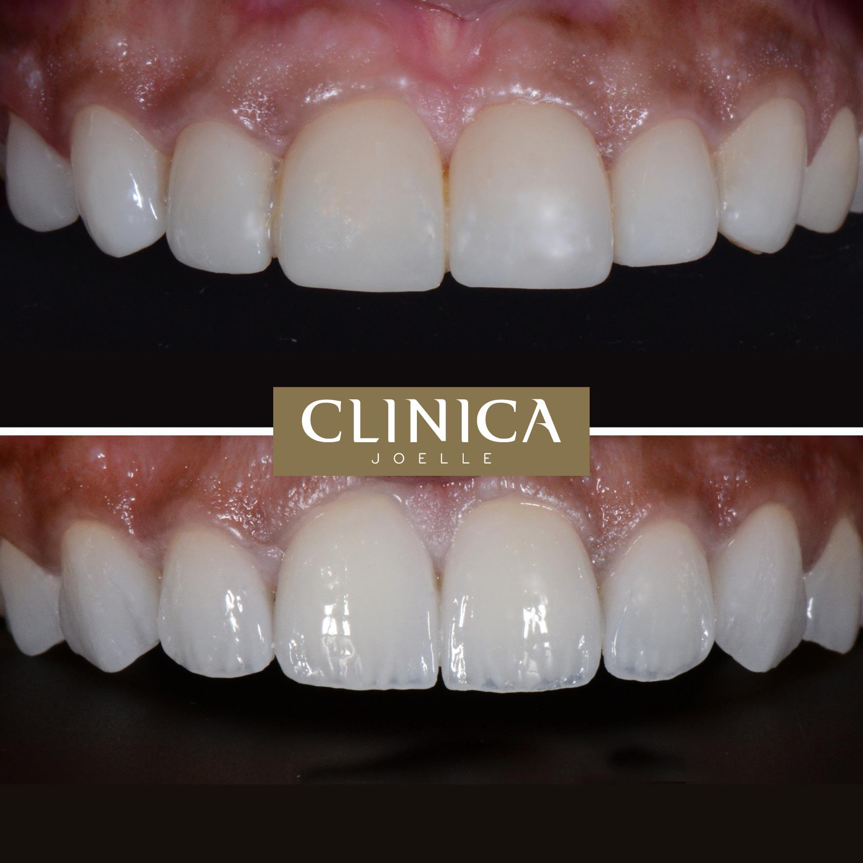 Before&After_Dr.Eyass_1.jpg
