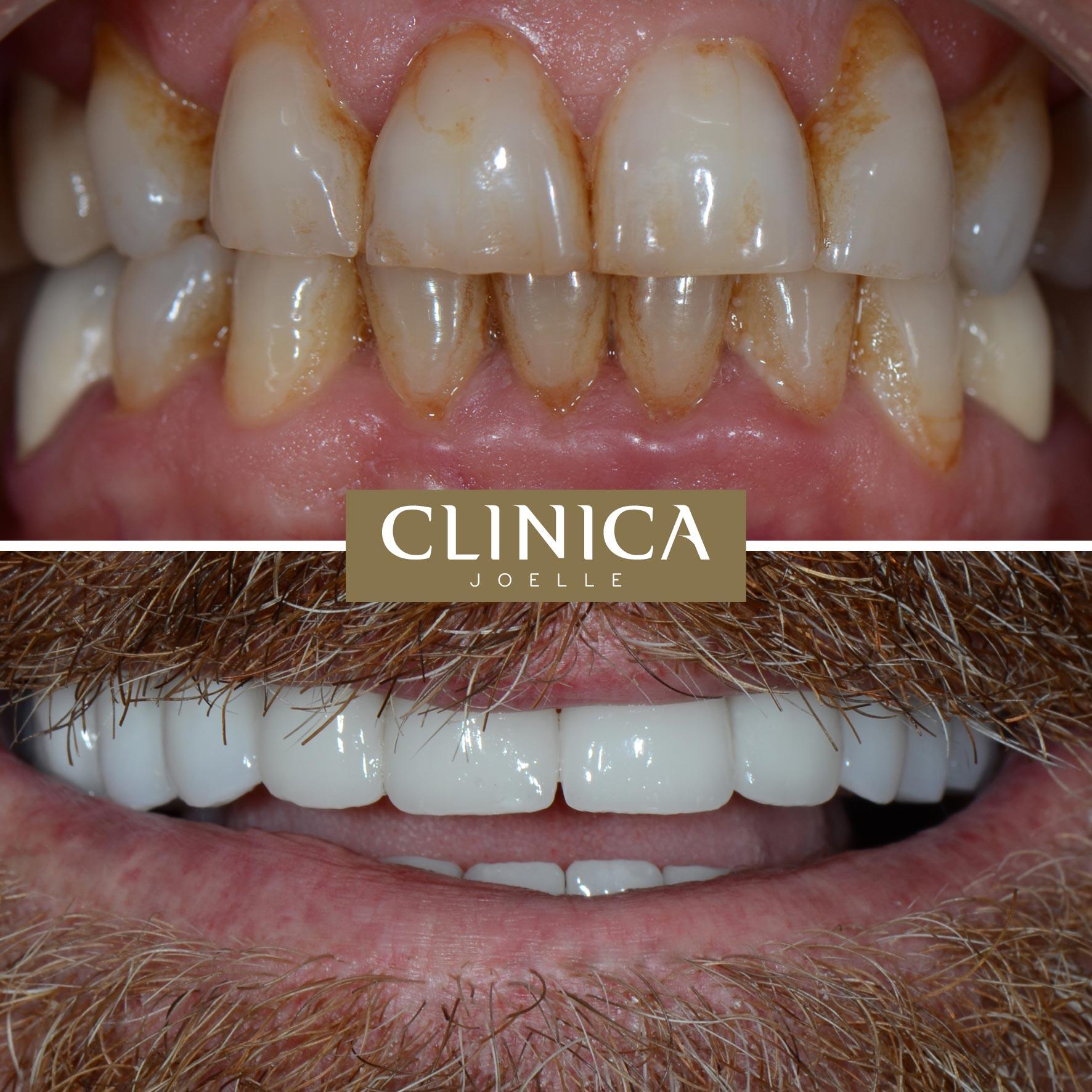 Before&After_Dr.Eyass_3.jpg