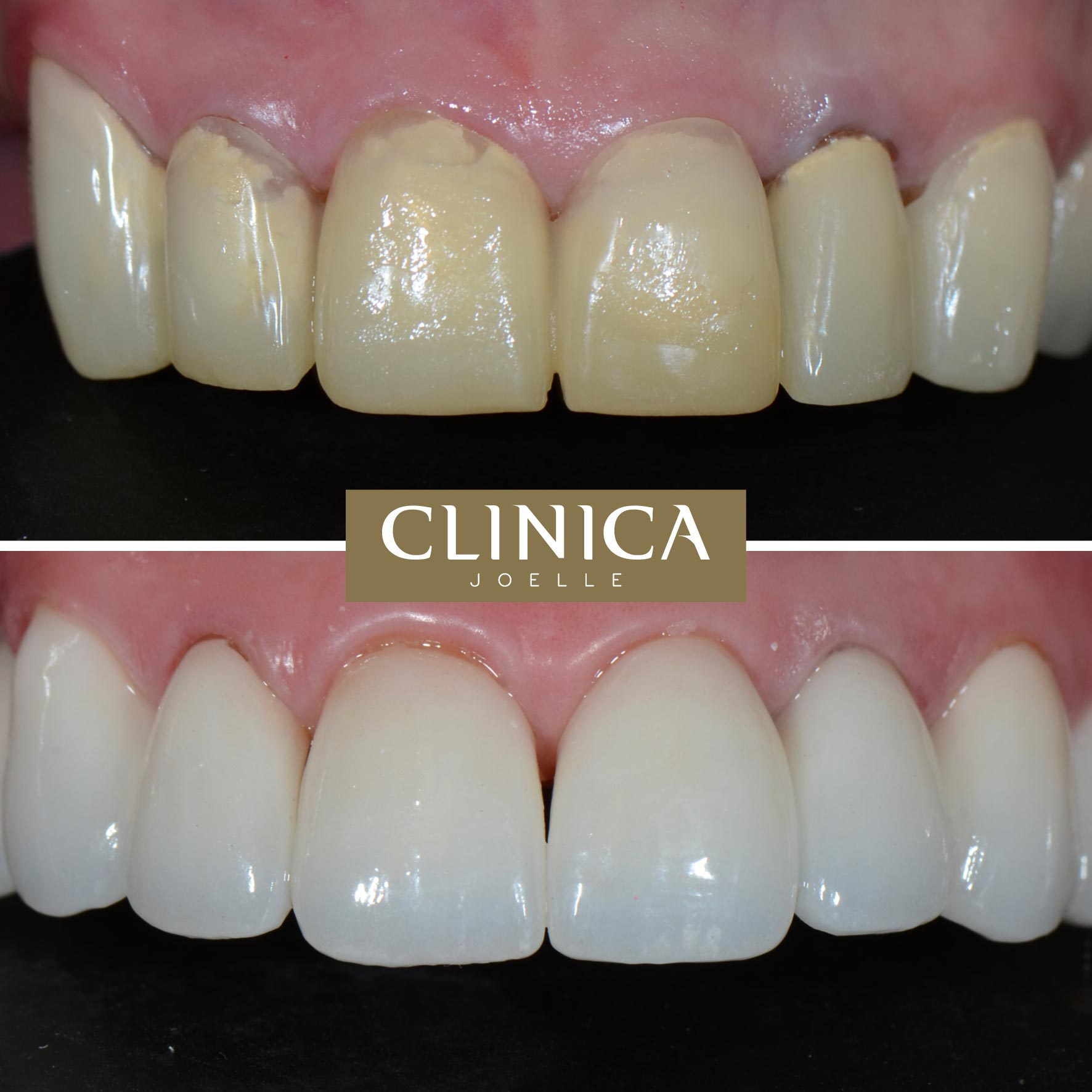 Before&After_Dr.Eyass_4.jpg