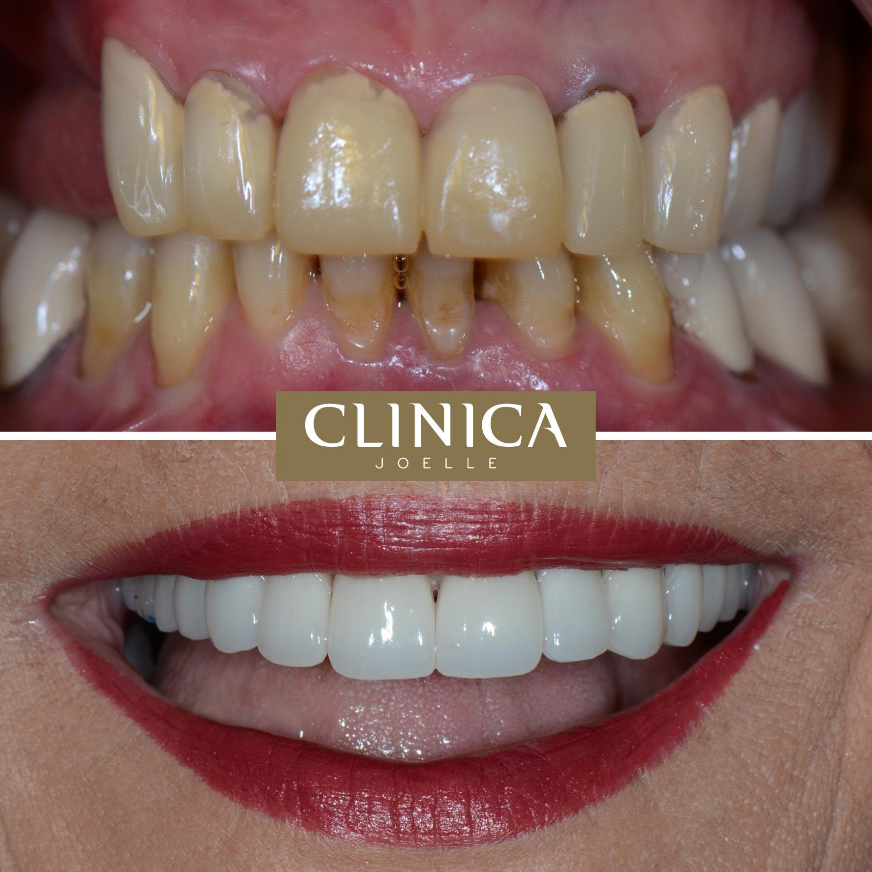 Before&After_Dr.Eyass_5.jpg