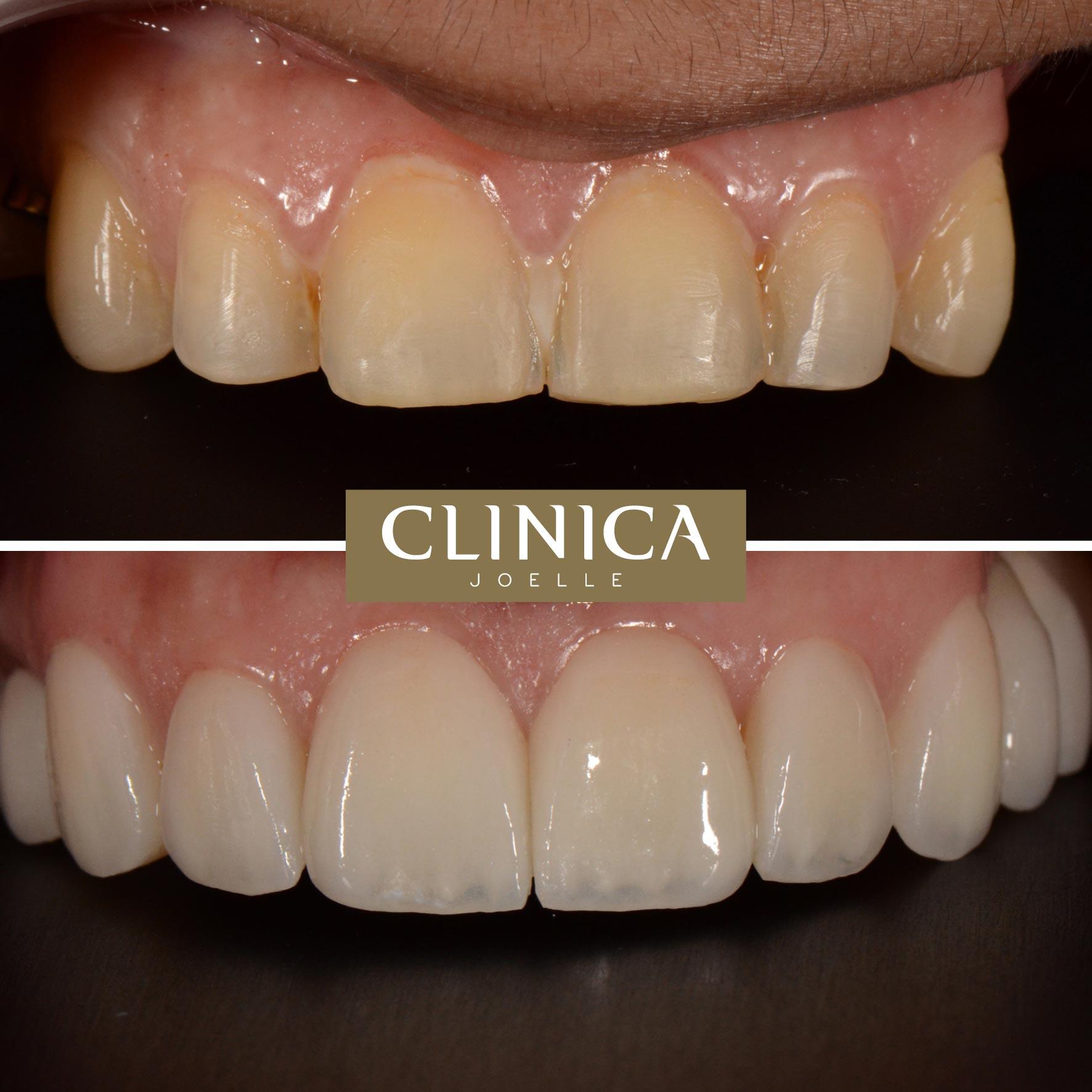 Before&After_Dr.Eyass_6.jpg