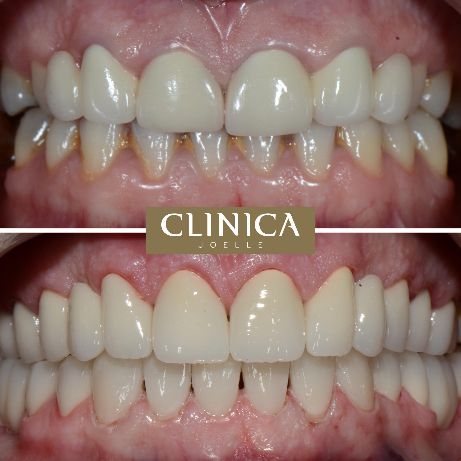 Before&After_Dr.Eyass_8.jpg