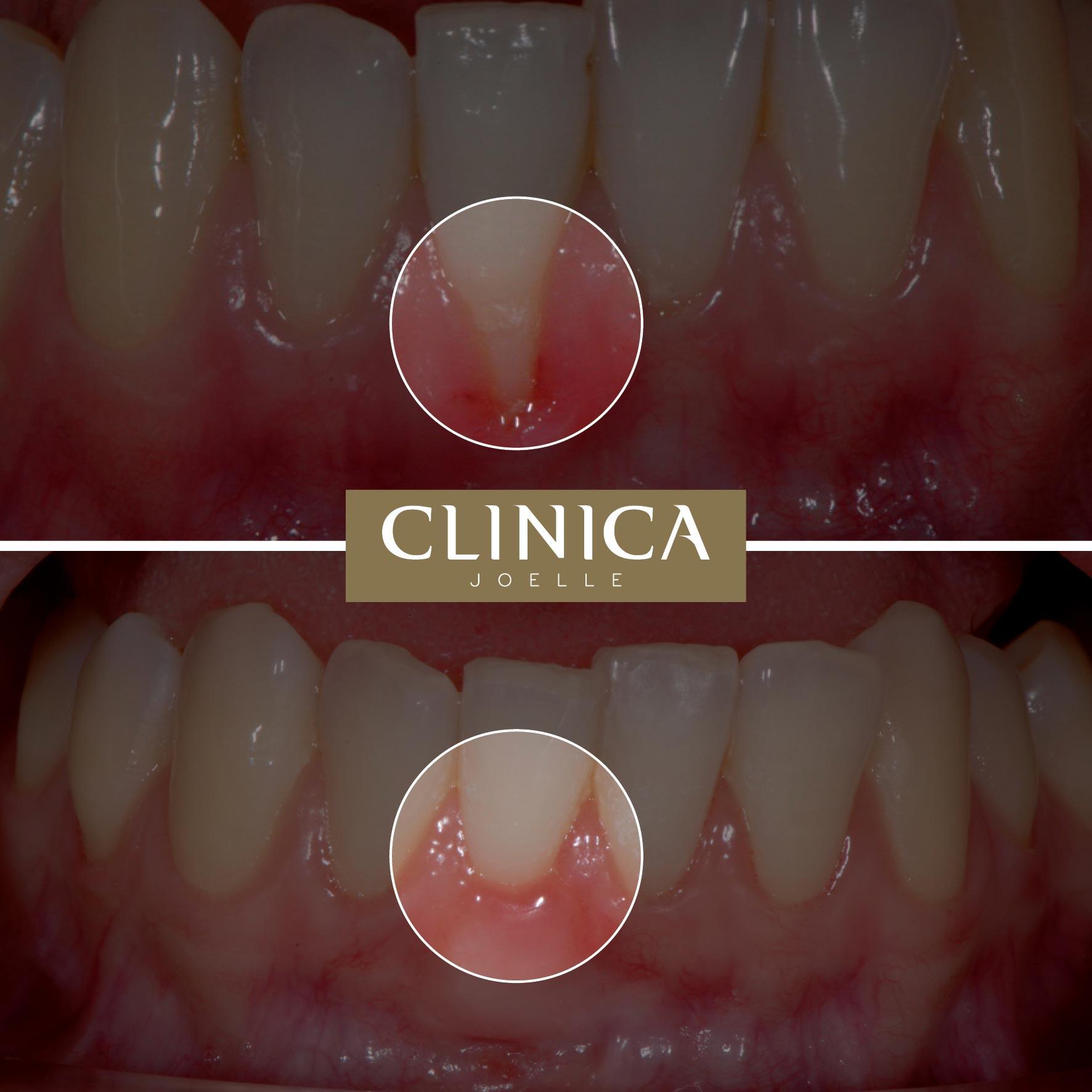 Before&After_Dr.Eyass_9.jpg