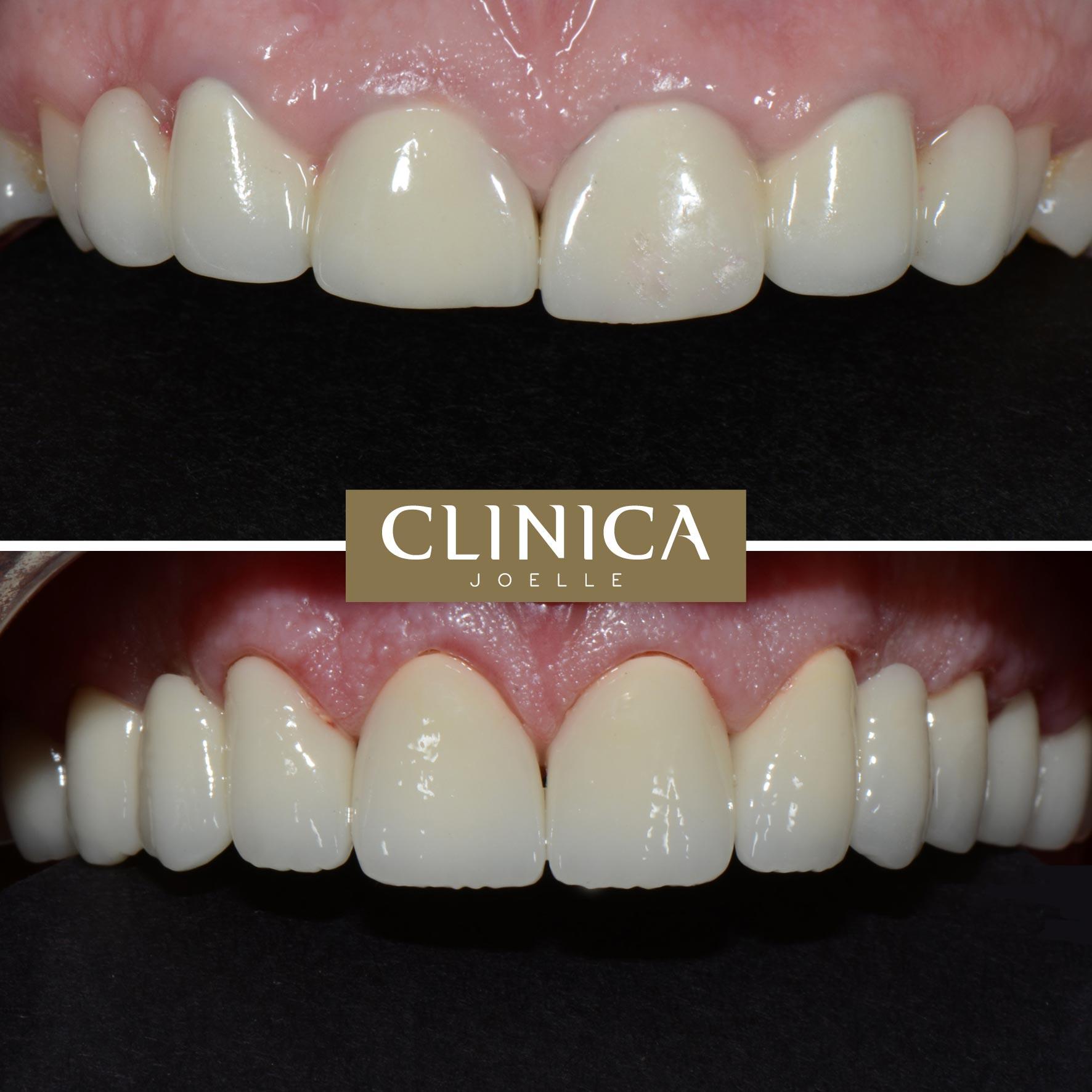 Before&After_Dr.Eyass_7.jpg