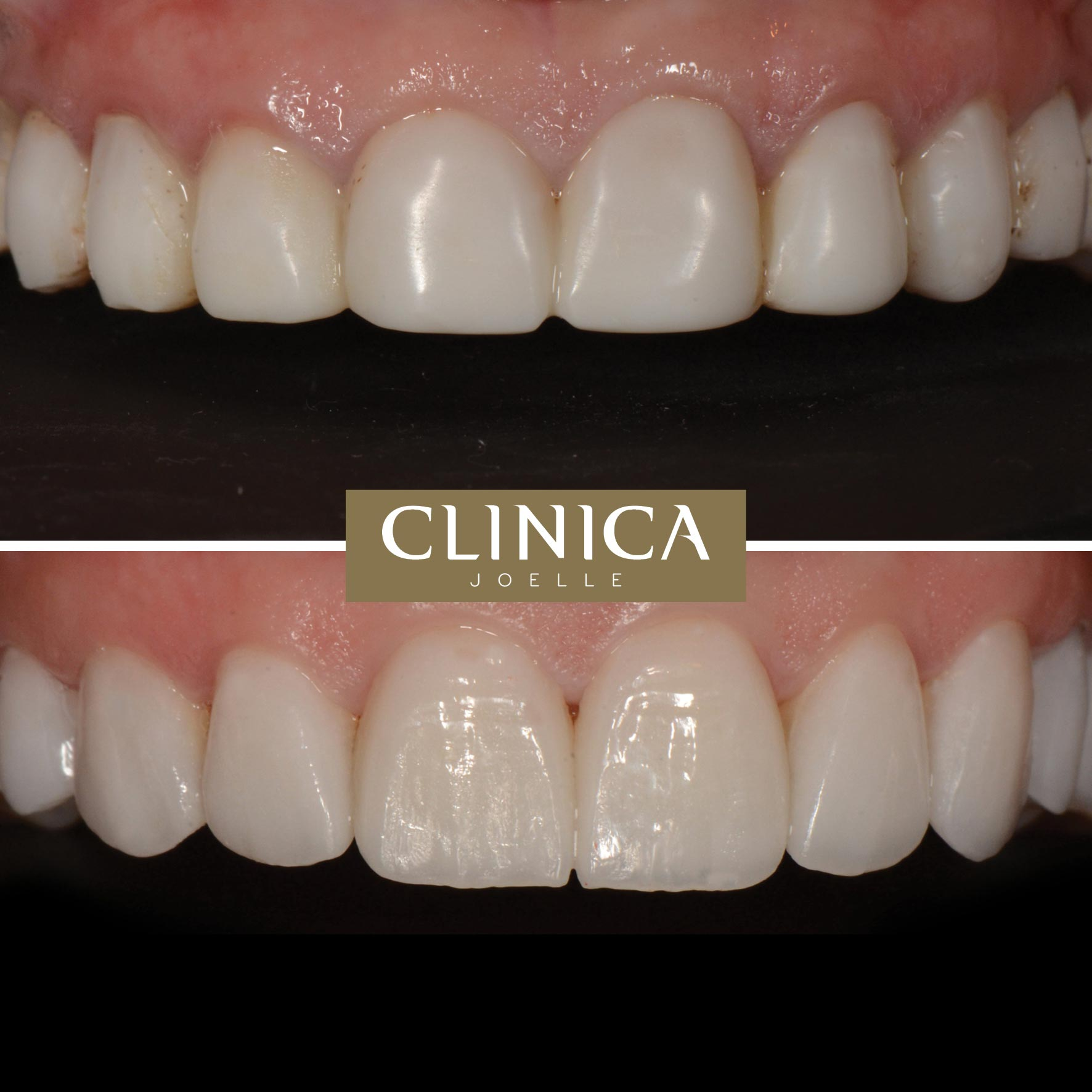 Before&After_Dr.Eyass_10.jpg