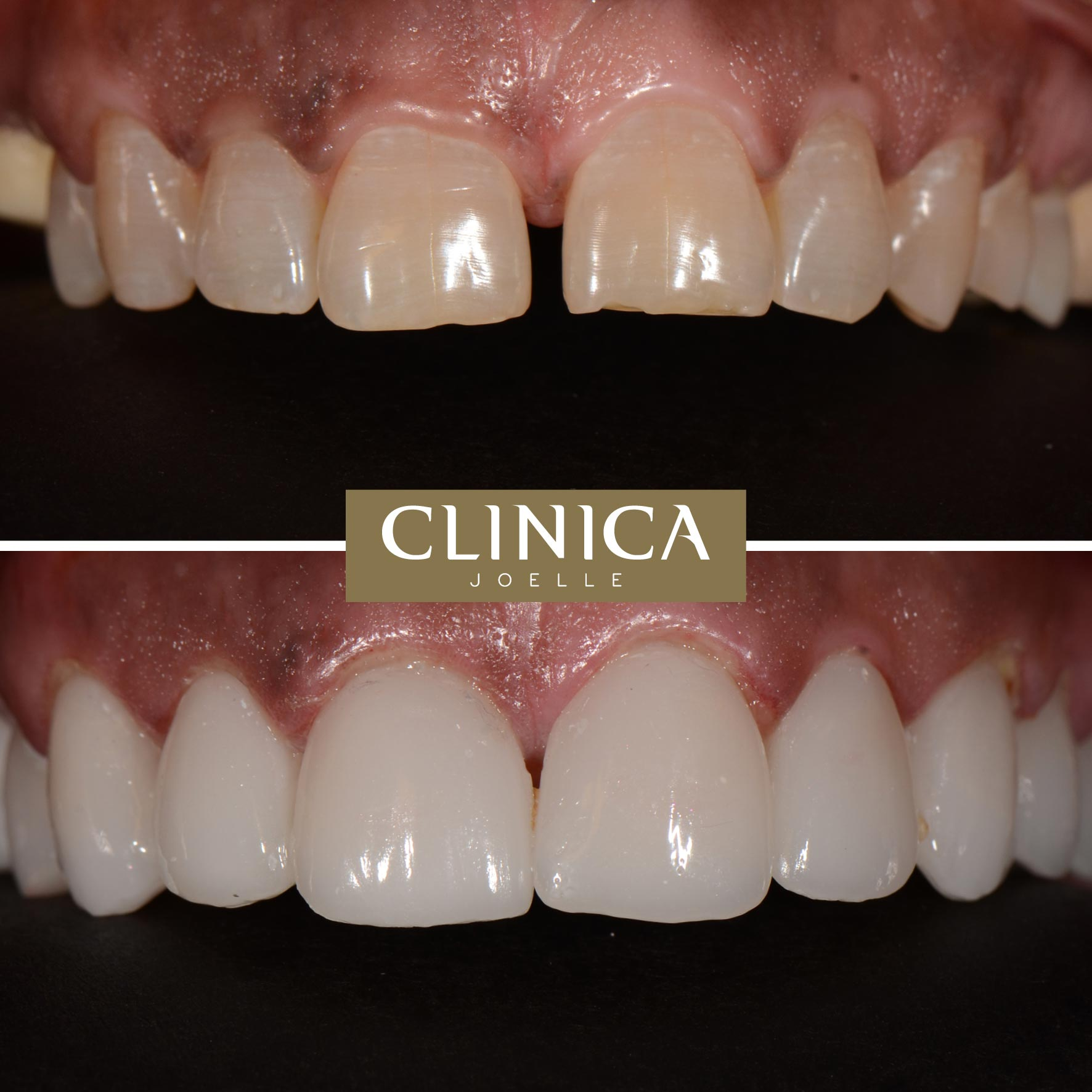 Before&After_Dr.Eyass_12.jpg