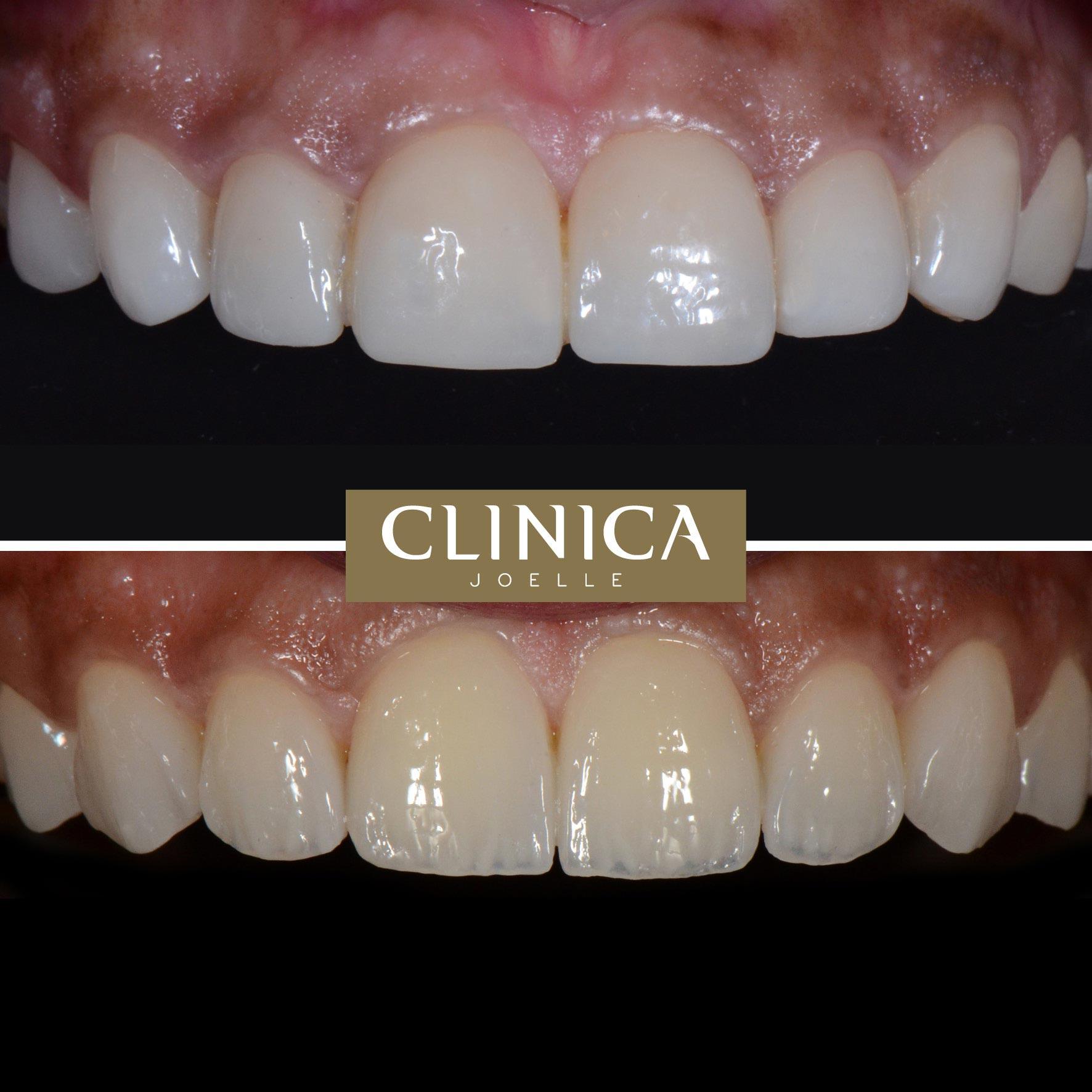 Before&After_Dr.Eyass_14.jpg
