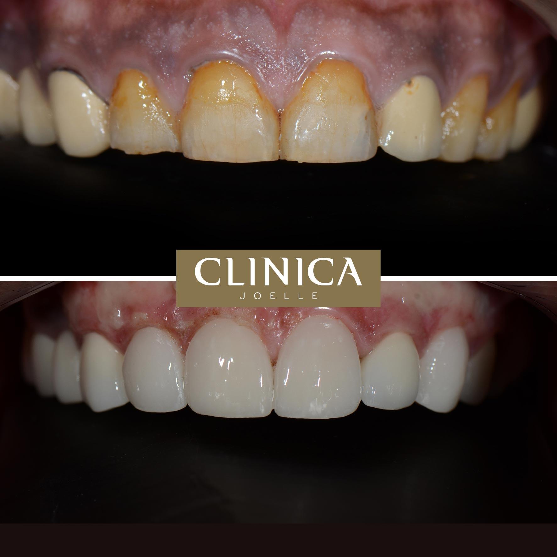 Before&After_Dr.Eyass_15.jpg