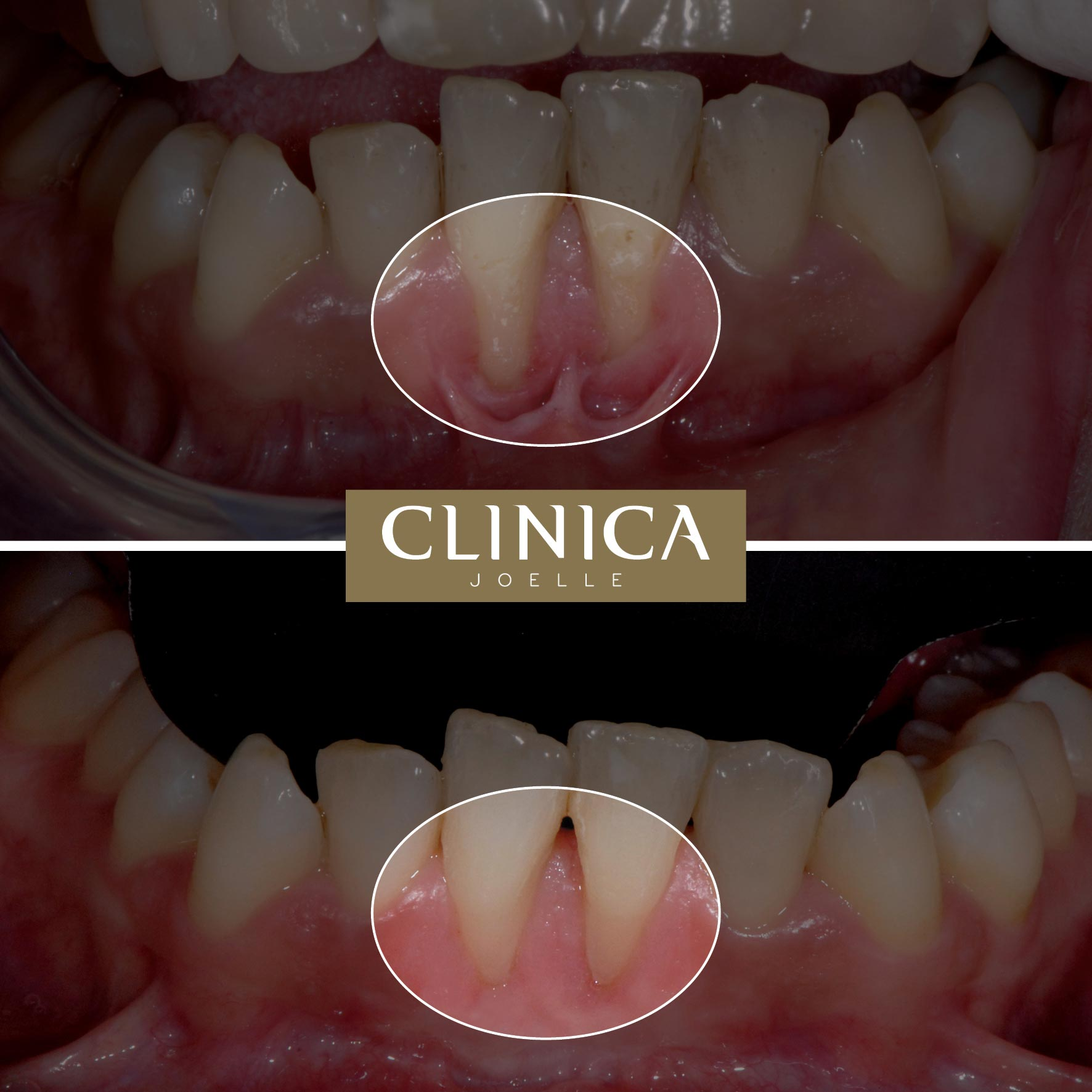 Before&After_Dr.Eyass_16.jpg
