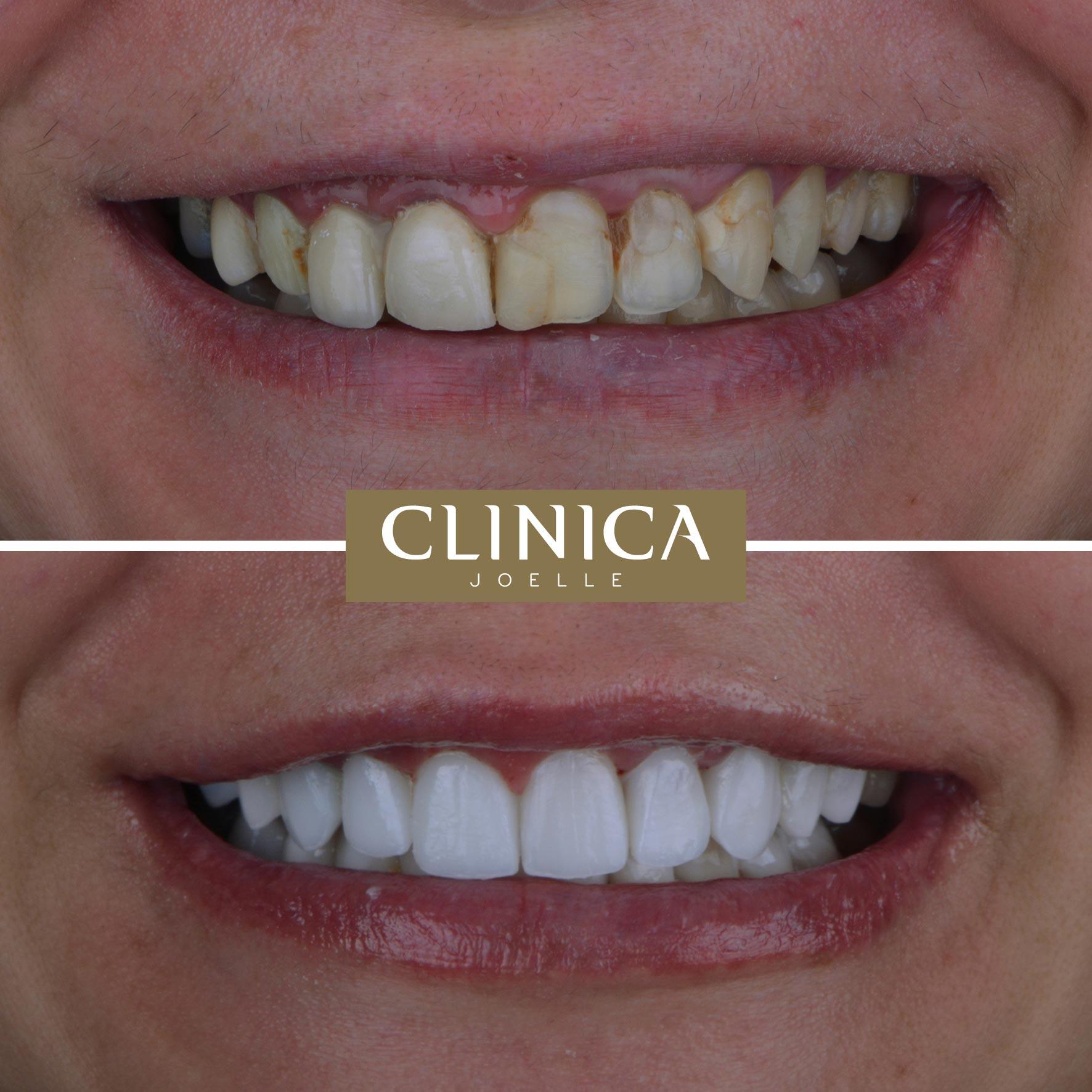 Before&After_Dr.Firas_1.jpg